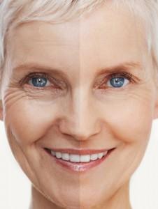 Skin Needling Fine Lines & Wrinkles