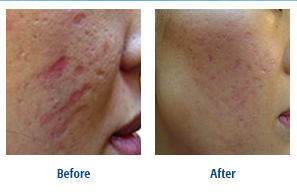Acne Treatment Using the Dermapen