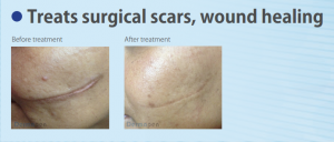 Skin Needling Improves Surgical Scars